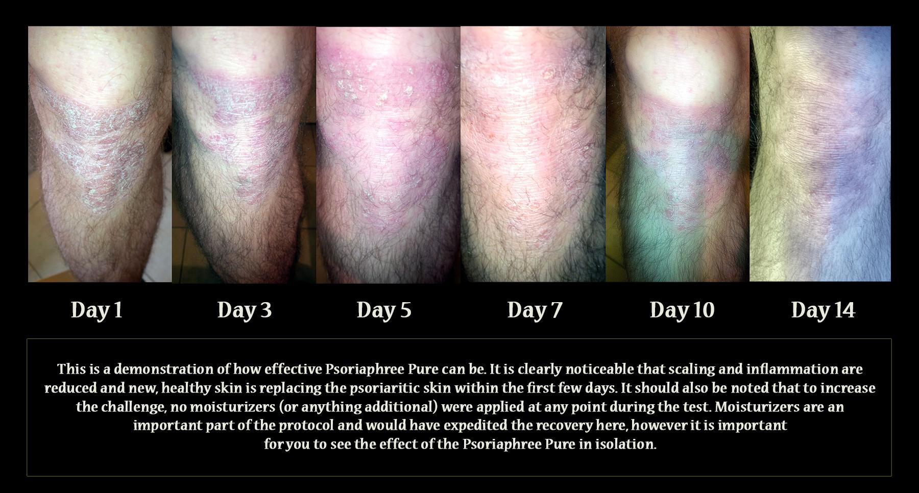 Psoriasis Timeline